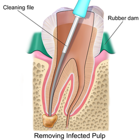 Root Canal Therapy-Always Genial Dental, Langhorne PA