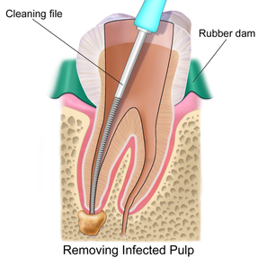Always Genial Dental  - Root Canal Therapy