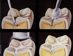 Always Genial Dental  - Sealants