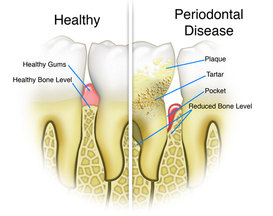 Always Genial Dental  - Periodontal Treatment