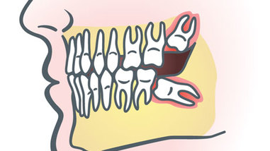 Always Genial Dental  - Wisdom Tooth Extraction