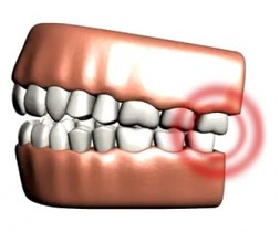 Always Genial Dental  - TMJ Disorder Treatment
