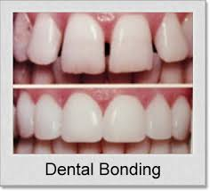 Bonding-Always Genial Dental, Langhorne PA